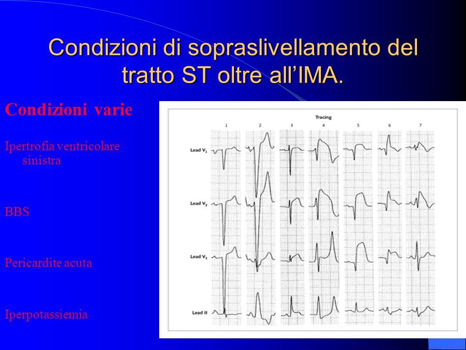 Condizioni di sopraslivellamento del tratto ST oltre all'IMA. Condizioni varie Ipertrofia ventricolare sinistra BBS Pericardite acuta Iperpotassiemia