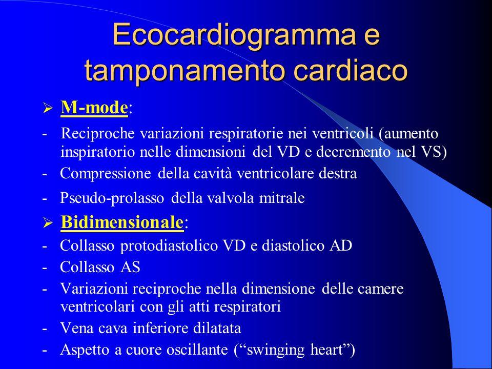 Ecocardiogramma e tamponamento cardiaco  M-mode: - Reciproche variazioni respiratorie nei ventricoli (aumento inspiratorio nelle dimensioni del VD e