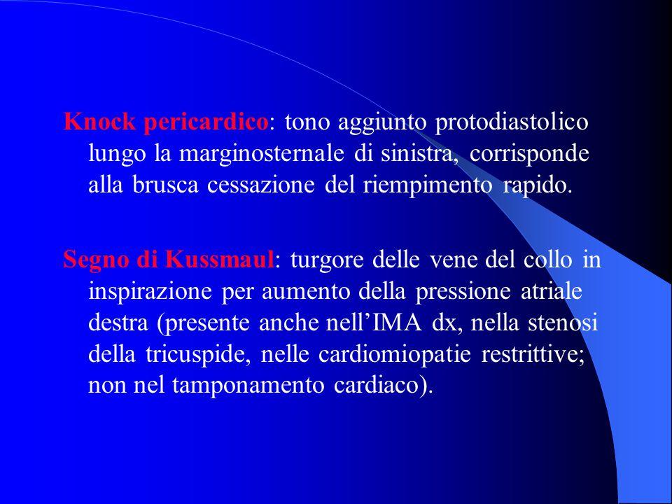 Knock pericardico: tono aggiunto protodiastolico lungo la marginosternale di sinistra, corrisponde alla brusca cessazione del riempimento rapido. Segn