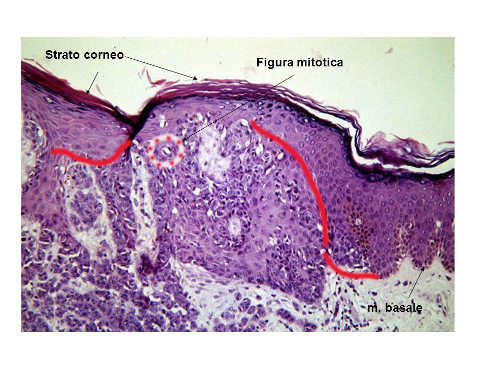 Figura mitotica Strato corneo m. basale