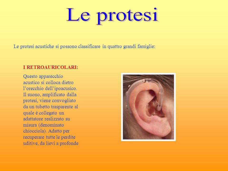 Le protesi acustiche si possono classificare in quattro grandi famiglie: I RETROAURICOLARI: Questo apparecchio acustico si colloca dietro l'orecchio d