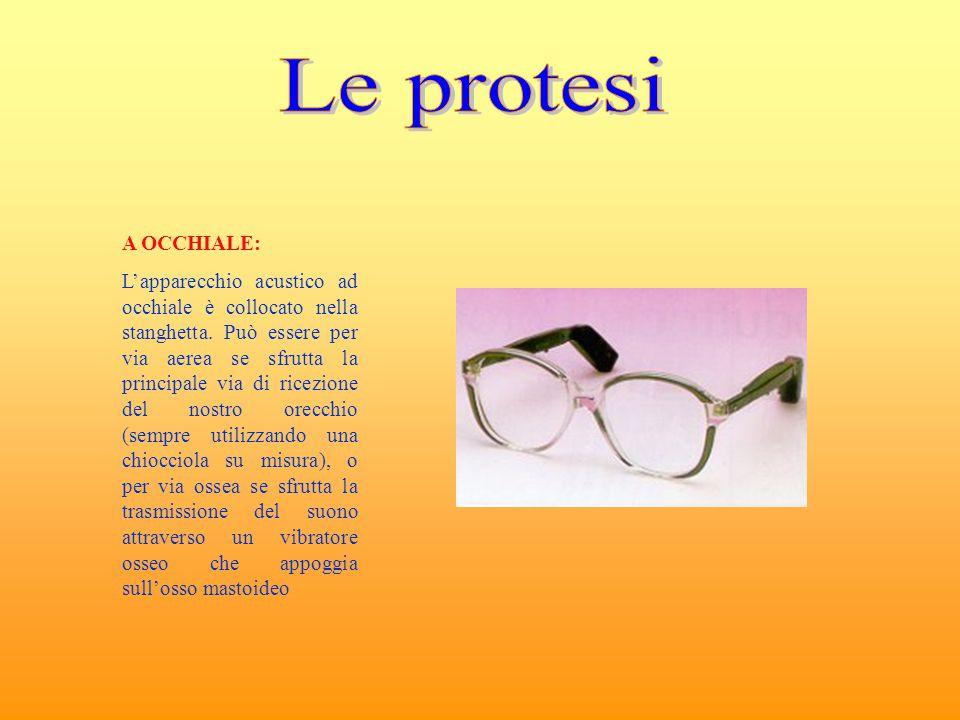 A OCCHIALE: L'apparecchio acustico ad occhiale è collocato nella stanghetta. Può essere per via aerea se sfrutta la principale via di ricezione del no