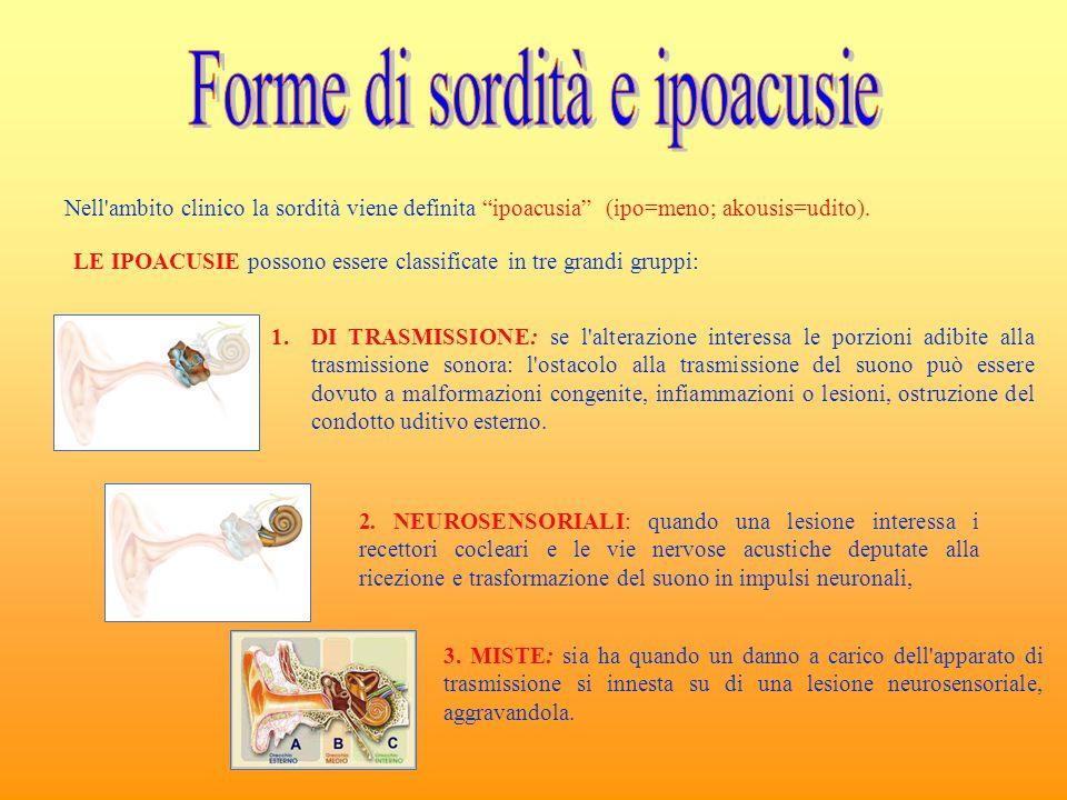 """Nell'ambito clinico la sordità viene definita """"ipoacusia"""" (ipo=meno; akousis=udito). LE IPOACUSIE possono essere classificate in tre grandi gruppi: 1."""