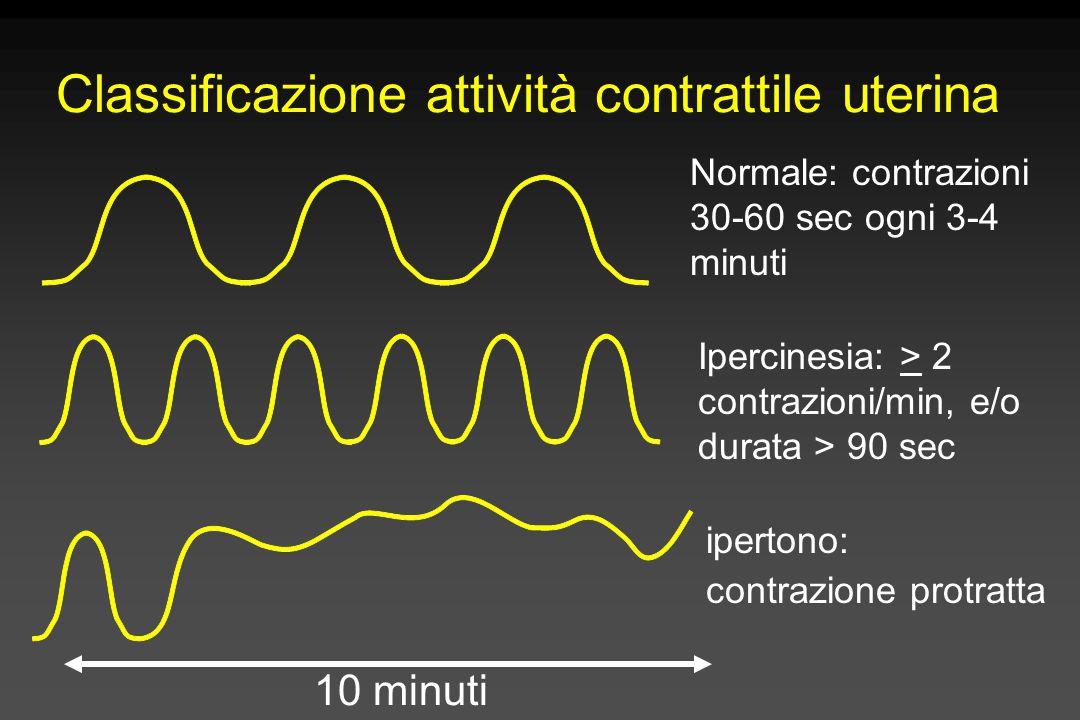 Classificazione attività contrattile uterina 10 minuti Normale: contrazioni 30-60 sec ogni 3-4 minuti Ipercinesia: > 2 contrazioni/min, e/o durata > 9