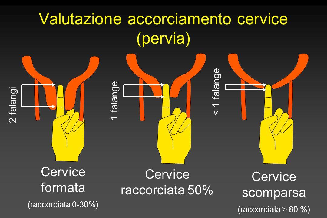 2 falangi 1 falange < 1 falange Valutazione accorciamento cervice (pervia) Cervice formata (raccorciata 0-30%) Cervice raccorciata 50% Cervice scompar