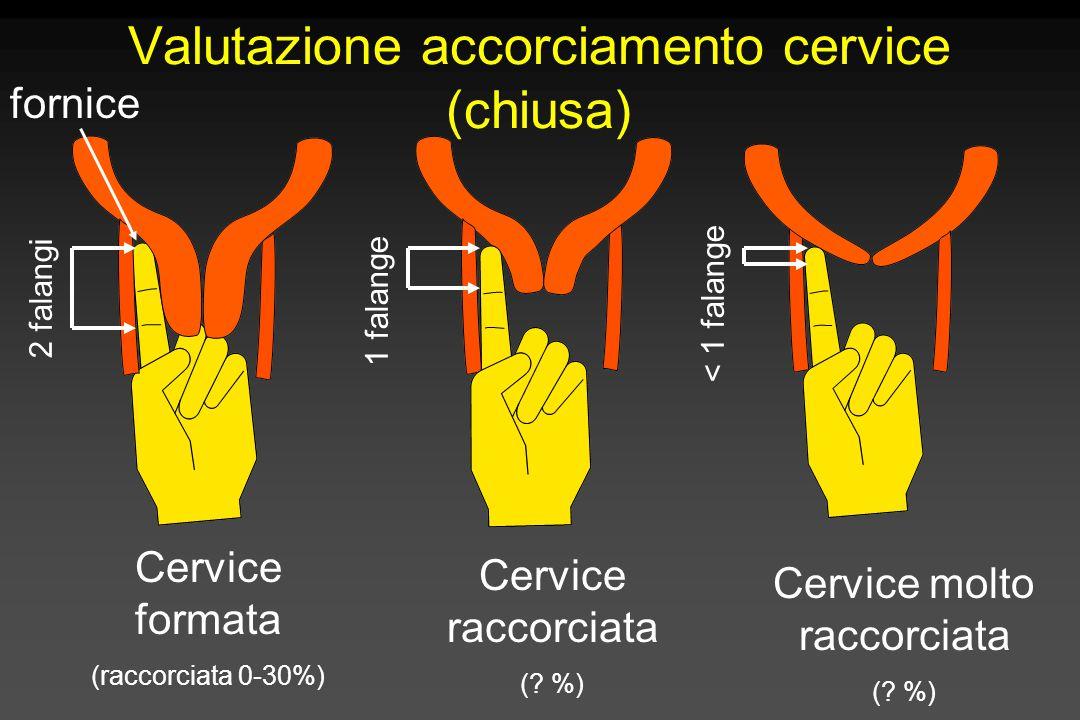 2 falangi 1 falange < 1 falange Cervice formata (raccorciata 0-30%) Cervice raccorciata (? %) Cervice molto raccorciata (? %) Valutazione accorciament