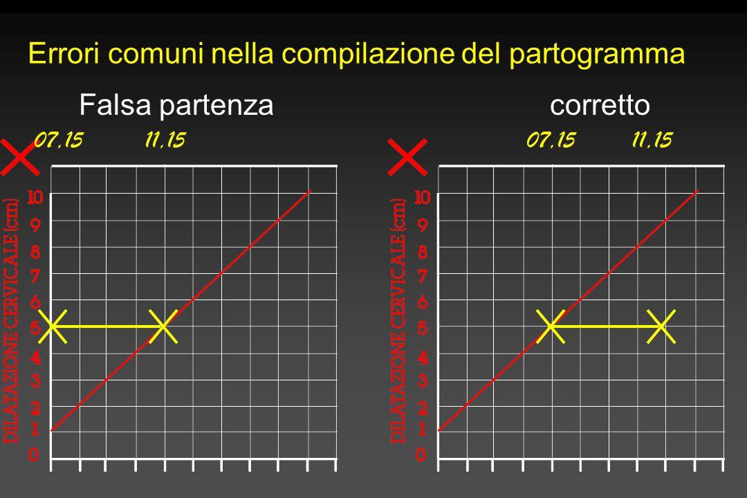 Errori comuni nella compilazione del partogramma 07,1511,1507,1511,15 Falsa partenzacorretto