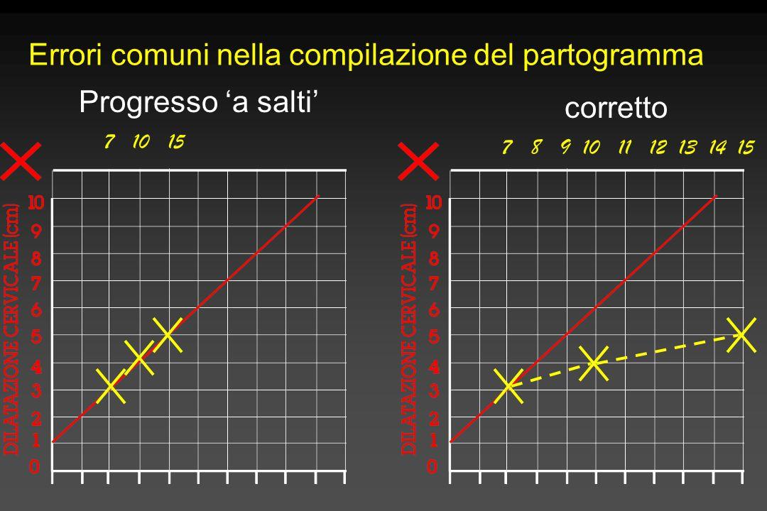 Errori comuni nella compilazione del partogramma 7 10 15 7 8 9 10 11 12 13 14 15 corretto Progresso 'a salti'
