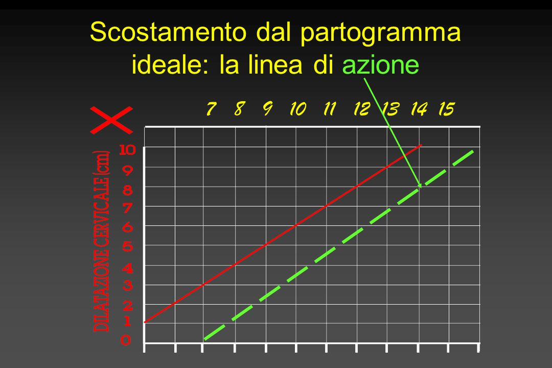Scostamento dal partogramma ideale: la linea di azione 7 8 9 10 11 12 13 14 15