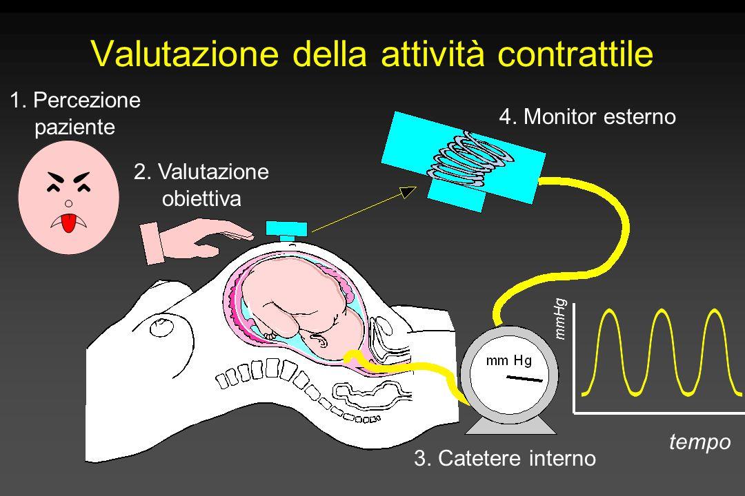 Valutazione della attività contrattile 1. Percezione paziente 2. Valutazione obiettiva 3. Catetere interno 4. Monitor esterno tempo mmHg