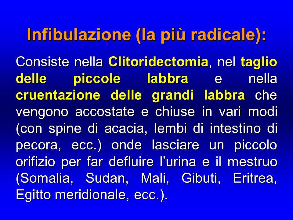 Infibulazione (la più radicale): Consiste nella Clitoridectomia, nel taglio delle piccole labbra e nella cruentazione delle grandi labbra che vengono