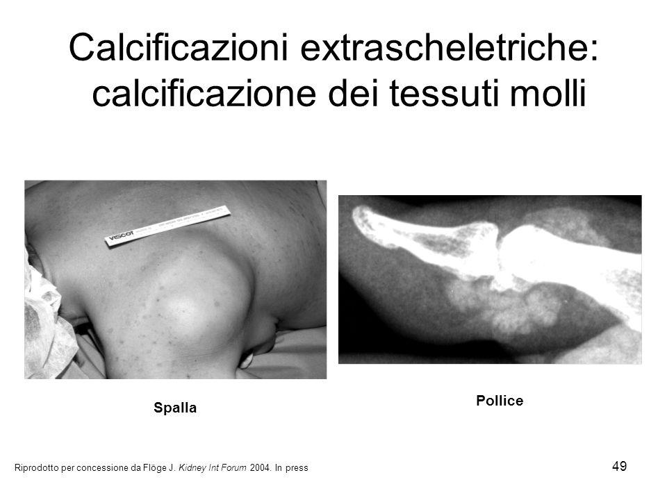 49 Calcificazioni extrascheletriche: calcificazione dei tessuti molli Spalla Pollice Riprodotto per concessione da Flöge J. Kidney Int Forum 2004. In