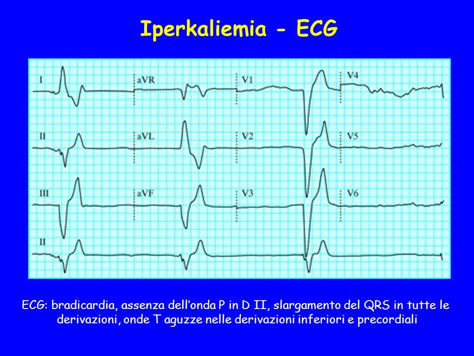 ECG: bradicardia, assenza dell'onda P in D II, slargamento del QRS in tutte le derivazioni, onde T aguzze nelle derivazioni inferiori e precordiali Iperkaliemia - ECG