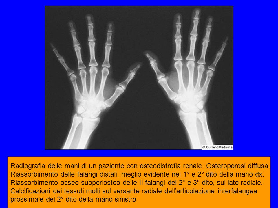 Radiografia delle mani di un paziente con osteodistrofia renale. Osteroporosi diffusa. Riassorbimento delle falangi distali, meglio evidente nel 1° e