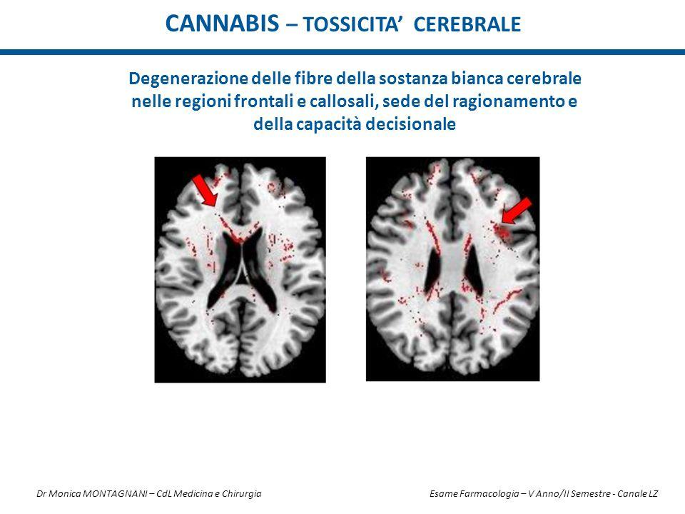 CANNABIS – TOSSICITA' CEREBRALE Degenerazione delle fibre della sostanza bianca cerebrale nelle regioni frontali e callosali, sede del ragionamento e