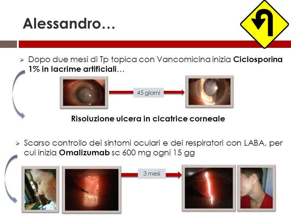 Alessandro…  Dopo due mesi di Tp topica con Vancomicina inizia Ciclosporina 1% in lacrime artificiali … Risoluzione ulcera in cicatrice corneale  Sc