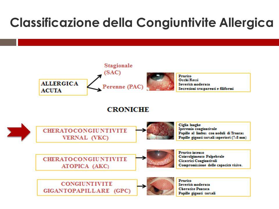 Classificazione della Congiuntivite Allergica