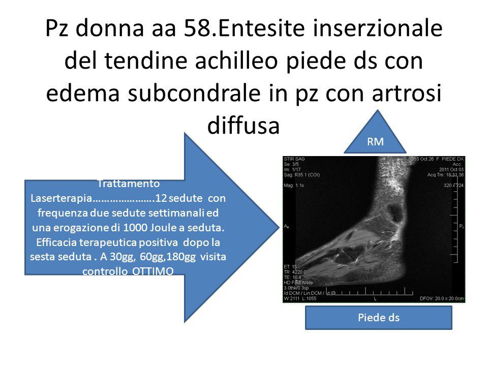 Pz donna aa 58.Entesite inserzionale del tendine achilleo piede ds con edema subcondrale in pz con artrosi diffusa Trattamento Laserterapia………………….12