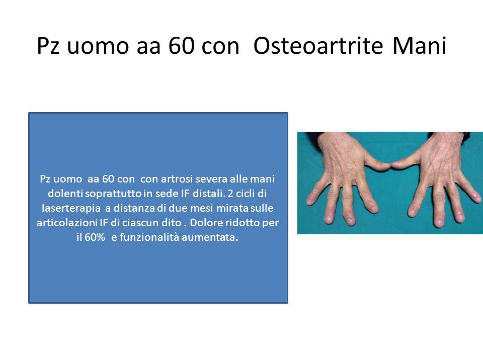 Pz uomo aa 60 con Osteoartrite Mani Pz uomo aa 60 con con artrosi severa alle mani dolenti soprattutto in sede IF distali. 2 cicli di laserterapia a d