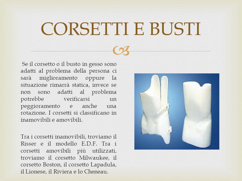  CORSETTI E BUSTI Se il corsetto o il busto in gesso sono adatti al problema della persona ci sarà miglioramento oppure la situazione rimarrà statica
