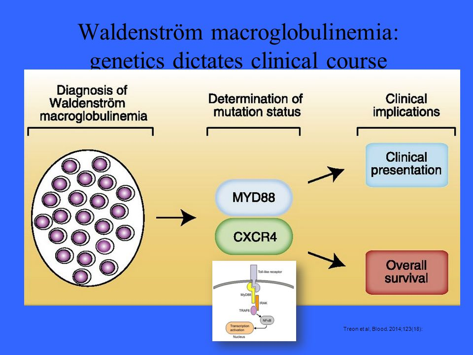 Waldenström macroglobulinemia: genetics dictates clinical course Treon et al, Blood. 2014;123(18):