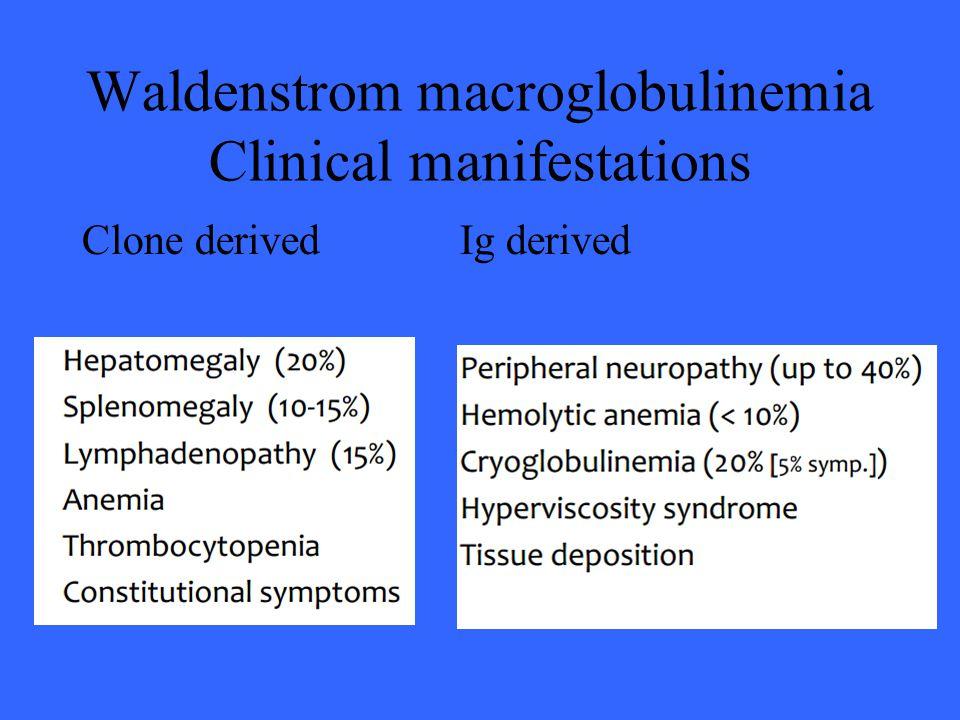 Waldenstrom macroglobulinemia Clinical manifestations Clone derivedIg derived