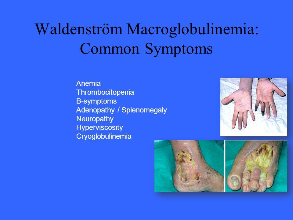 Anemia Thrombocitopenia B-symptoms Adenopathy / Splenomegaly Neuropathy Hyperviscosity Cryoglobulinemia Waldenström Macroglobulinemia: Common Symptoms