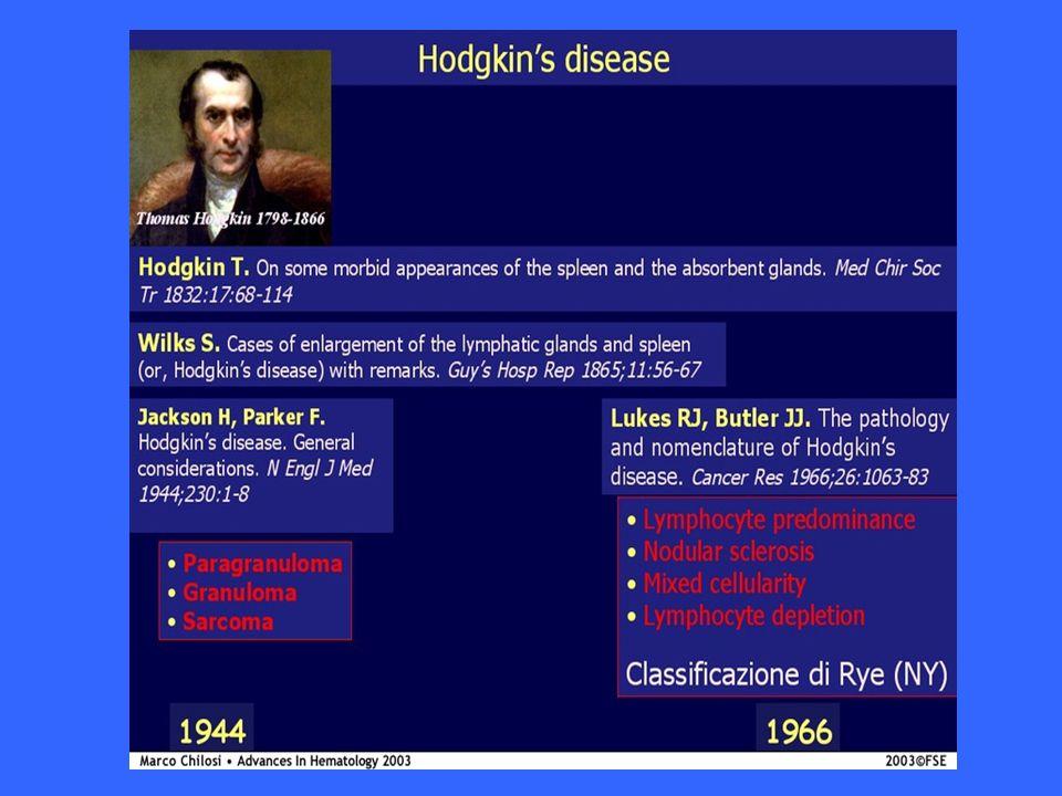 Il linfoma di Hodgkin è una neoplasia di origine linfoide B caratterizzata, dal punto di vista diagnostico, dalla presenza delle cellule di Hodgkin e di Reed-Sternberg, nel contesto di cellule infiammatorie e accessorie non neoplastiche.