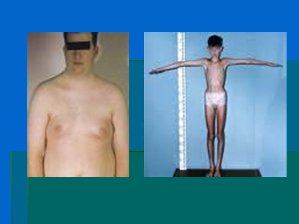 Quadro ormonale…  Generalmente i tassi plasmatici di FSH e LH, prodotti dall'ipofisi, sono elevati.