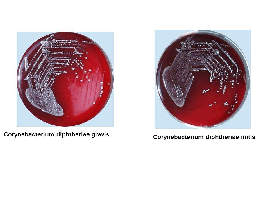 Corynebacterium diphtheriae gravis Corynebacterium diphtheriae mitis