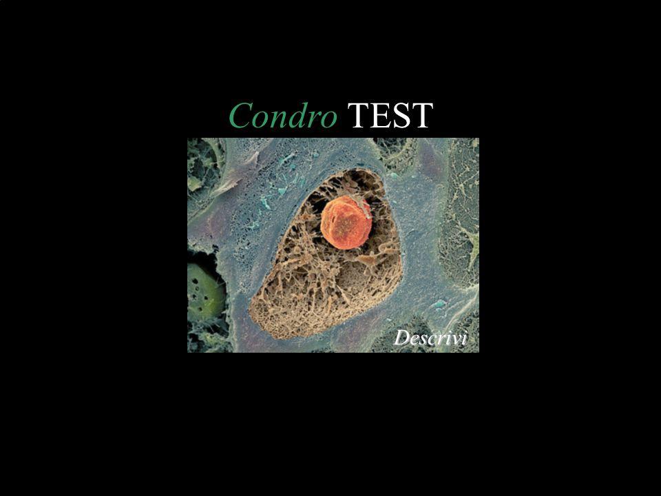 Condro TEST Descrivi