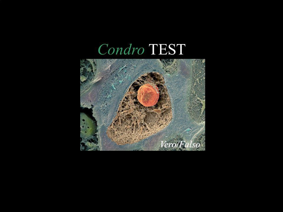 Condro TEST Vero/Falso
