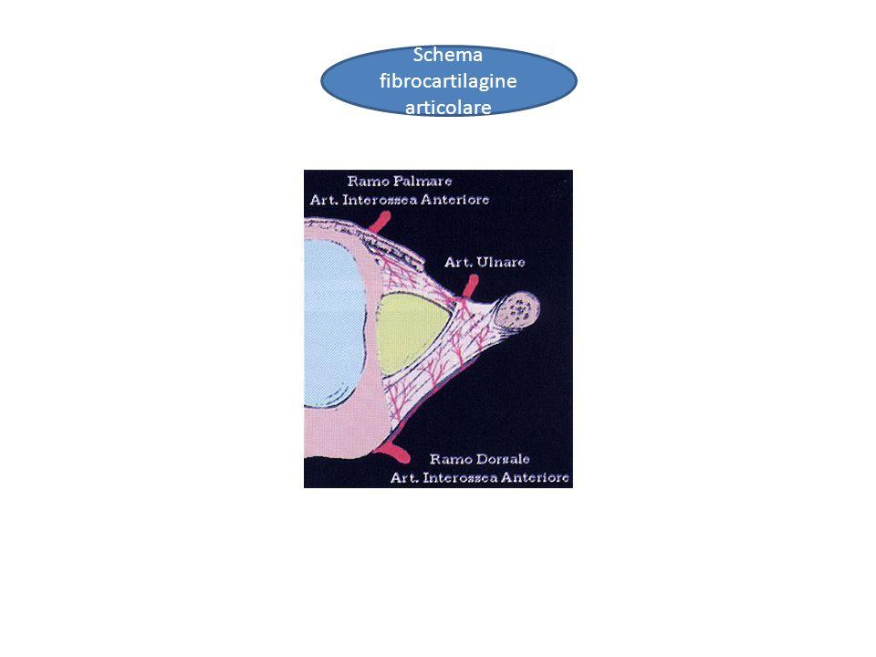 Fibrocartilagine triangolare polso