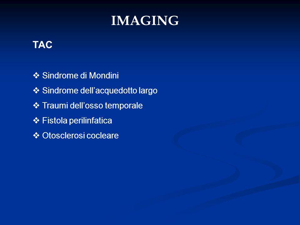 IMAGING TAC  Sindrome di Mondini  Sindrome dell'acquedotto largo  Traumi dell'osso temporale  Fistola perilinfatica  Otosclerosi cocleare