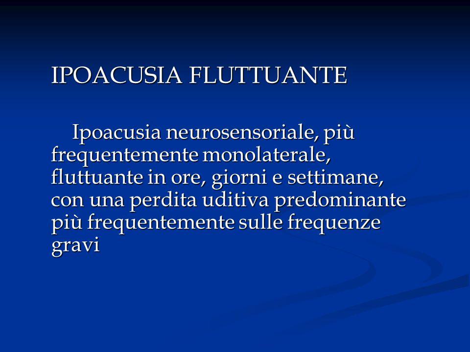 IPOACUSIA FLUTTUANTE Ipoacusia neurosensoriale, più frequentemente monolaterale, fluttuante in ore, giorni e settimane, con una perdita uditiva predom