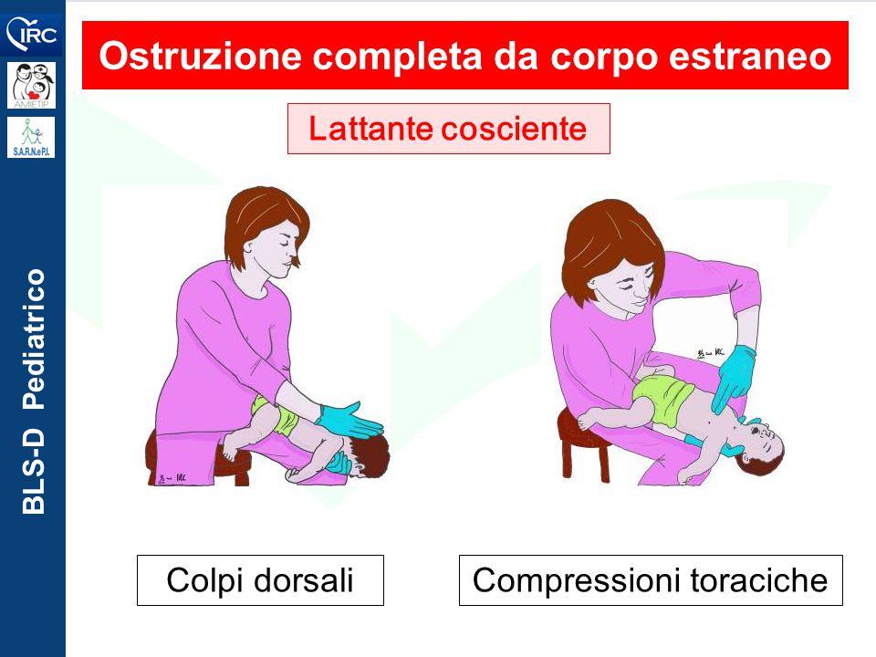 BLS-D Pediatrico Ostruzione completa da corpo estraneo Lattante cosciente Colpi dorsaliCompressioni toraciche