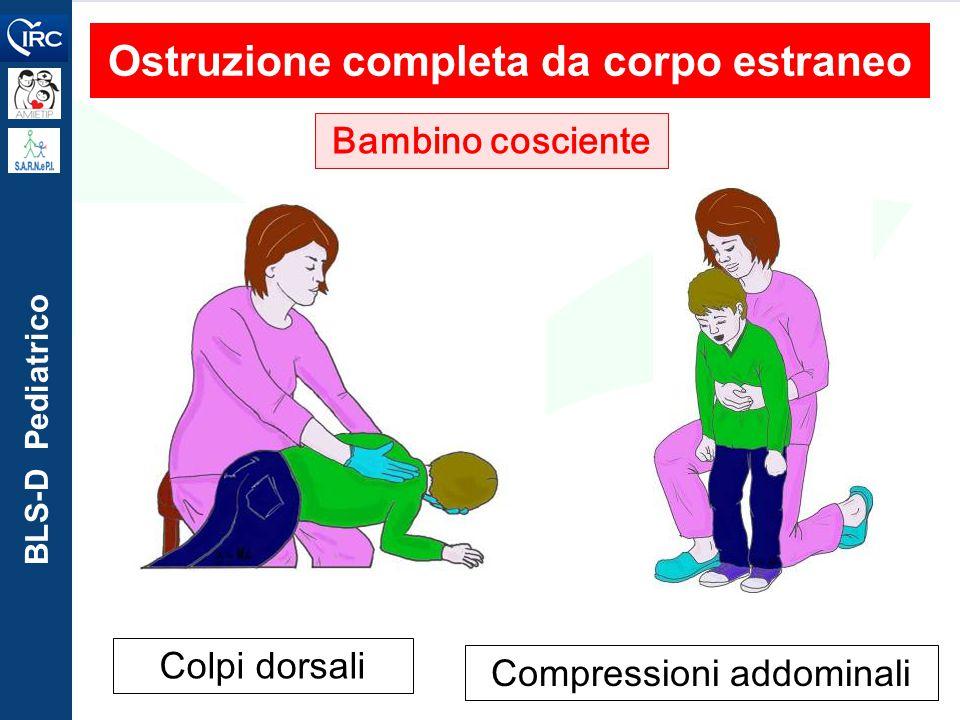 BLS-D Pediatrico Ostruzione completa da corpo estraneo Bambino cosciente Colpi dorsali Compressioni addominali