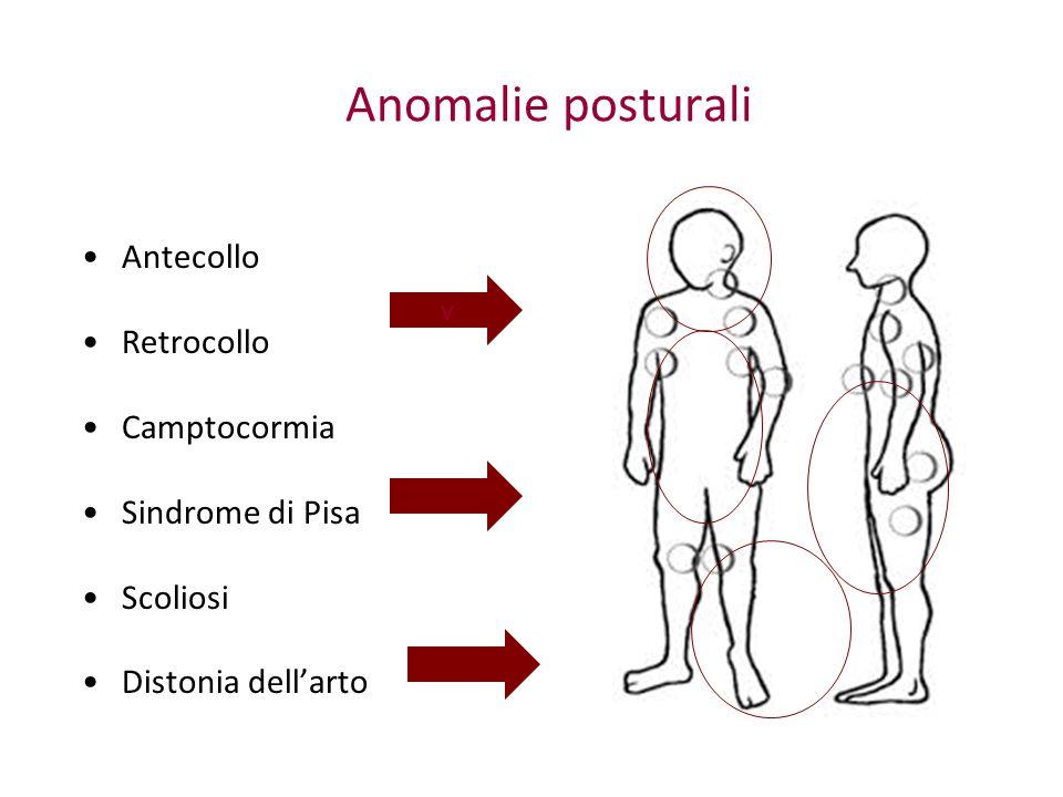 In alcuni casi iniziali, può regredire semplicemente con la modificazione della terapia dopaminergica Anticolinergici, Clozapina, Rasagilina Tossina Botulinica nei mm lombari paraspinali.