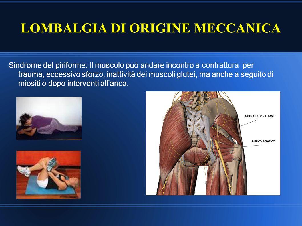 LOMBALGIA DI ORIGINE MECCANICA Sindrome del piriforme: Il muscolo può andare incontro a contrattura per trauma, eccessivo sforzo, inattività dei musco