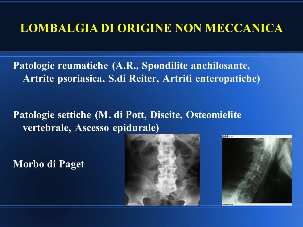 LOMBALGIA DA MALATTIE VISCERALI Patologie vascolari (aneurisma dell'aorta addominale) Patologie del pancreas (neoplasie, pancreatite) Patologie retroperitoneali (neoplasie, ematomi,fibrosi) Patologie renali (Neoplasie, calcolosi, pielonefriti etc) Patologie dell'apparato gastrointestinale (neoplasie, ulcera, rettocolite ulcerosa; sindrome colon irritabile) Patologie dell'apparato genitale (neoplasie, dismenorrea, endometriosi, gravidanza extrauterina)