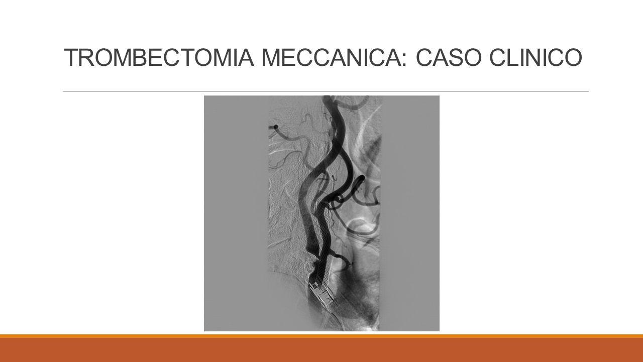 TROMBECTOMIA MECCANICA: CASO CLINICO