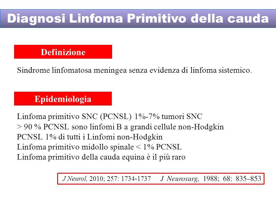 Sindrome linfomatosa meningea senza evidenza di linfoma sistemico.