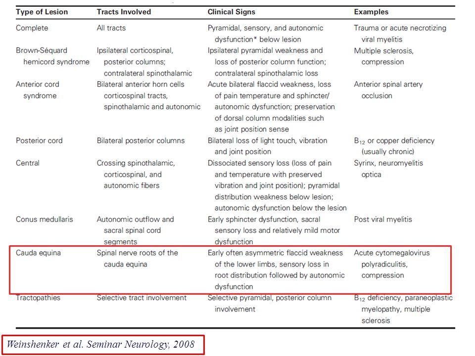 Immagine Lancet Weinshenker et al. Seminar Neurology, 2008