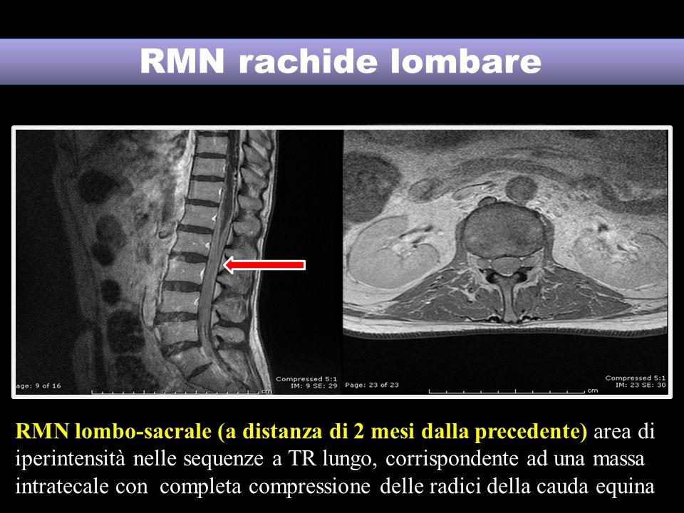 RMN rachide lombare RMN lombo-sacrale (a distanza di 2 mesi dalla precedente) area di iperintensità nelle sequenze a TR lungo, corrispondente ad una massa intratecale con completa compressione delle radici della cauda equina