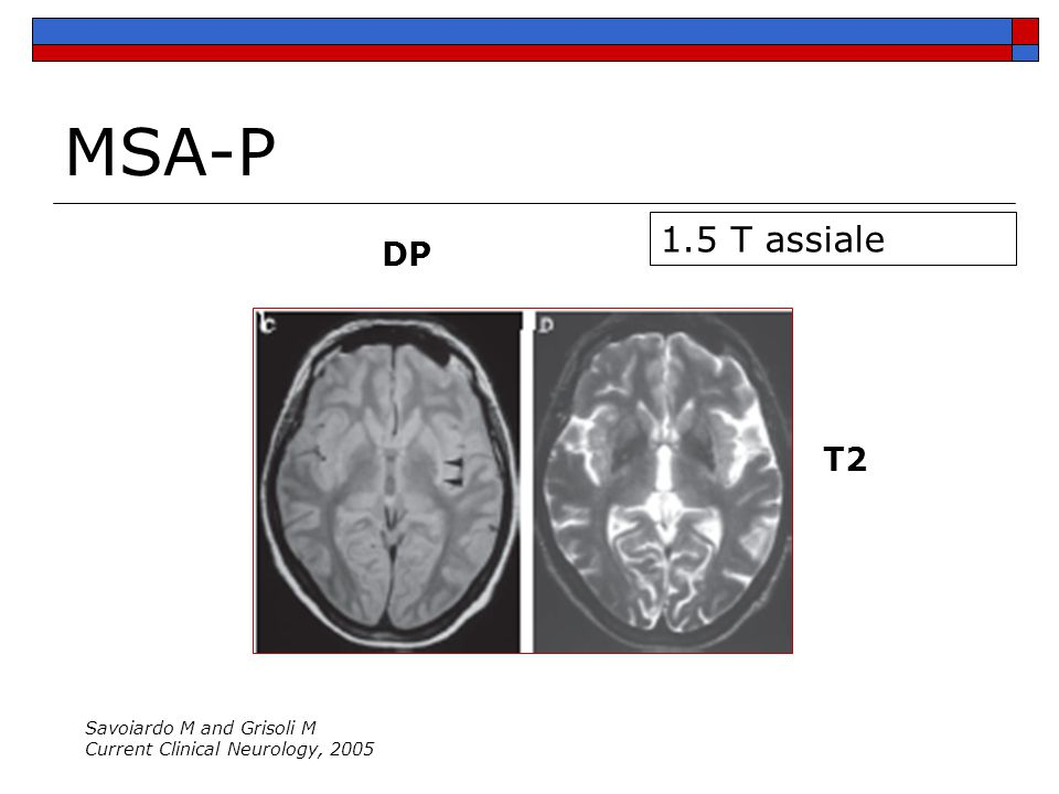 1.5 T assiale DP T2 Savoiardo M and Grisoli M Current Clinical Neurology, 2005 MSA-P