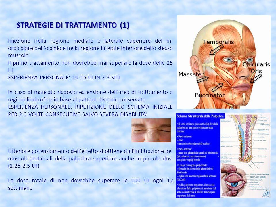 STRATEGIE DI TRATTAMENTO (1) Iniezione nella regione mediale e laterale superiore del m. orbicolare dell'occhio e nella regione laterale inferiore del
