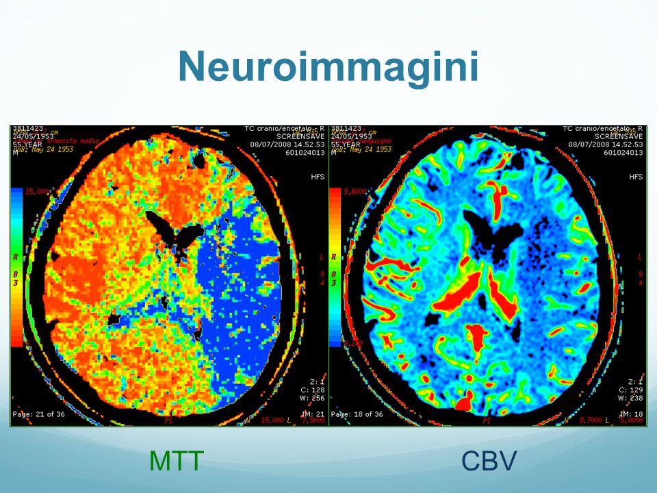 CBVMTT Neuroimmagini