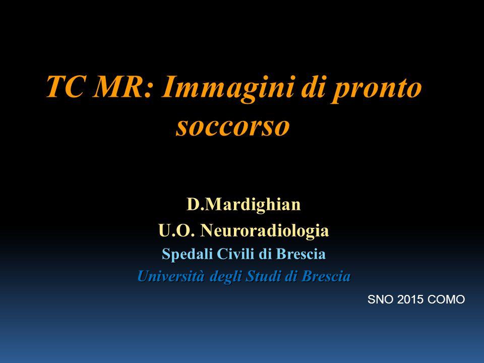 TC MR: Immagini di pronto soccorso D.Mardighian U.O. Neuroradiologia Spedali Civili di Brescia Università degli Studi di Brescia SNO 2015 COMO