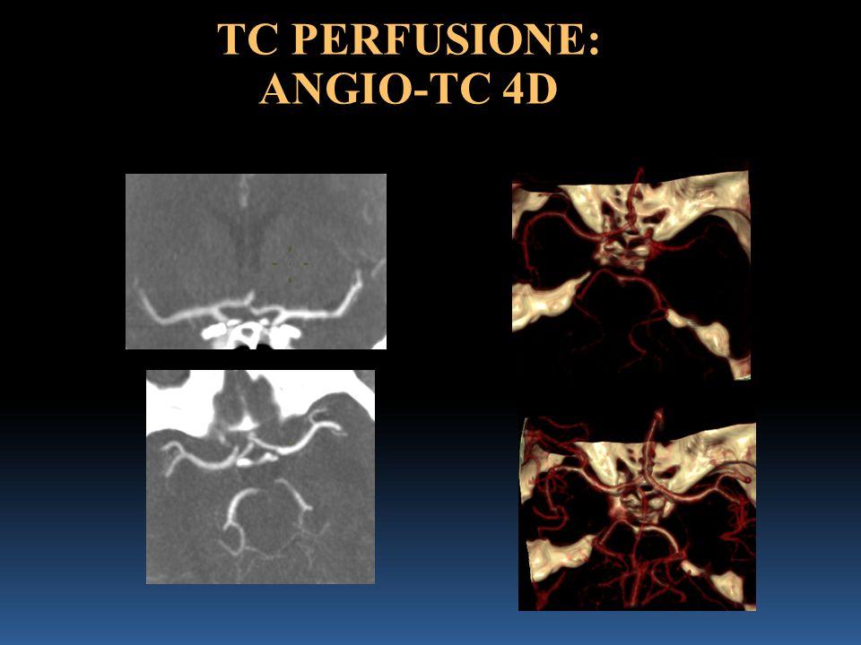 TC PERFUSIONE: ANGIO-TC 4D