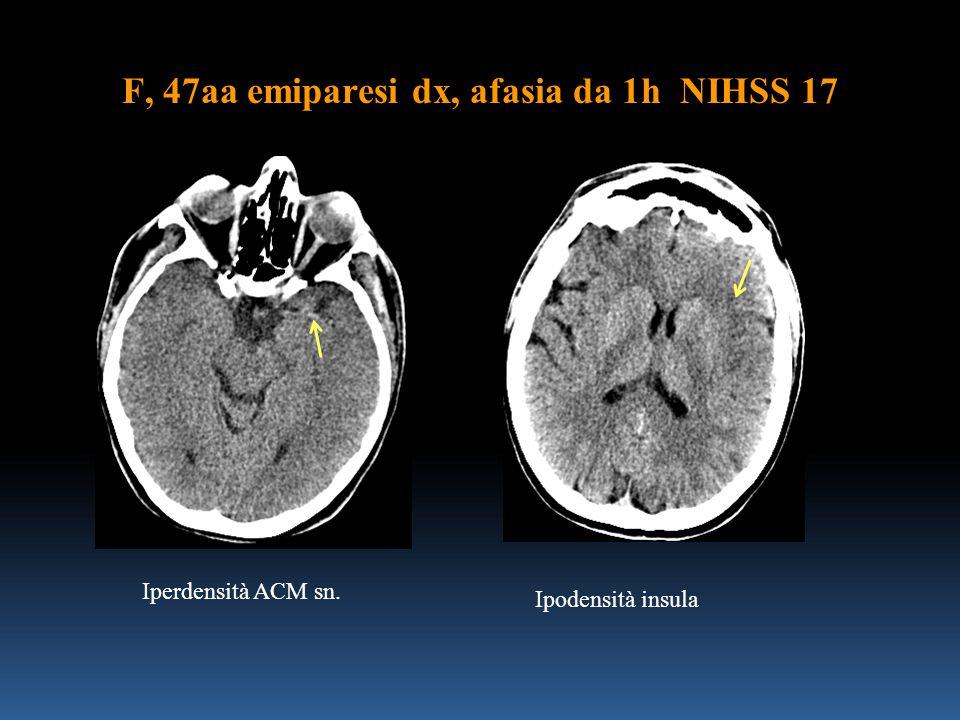 F, 47aa emiparesi dx, afasia da 1h NIHSS 17 Iperdensità ACM sn. Ipodensità insula